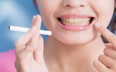 Smoking after Wisdom teeth removal