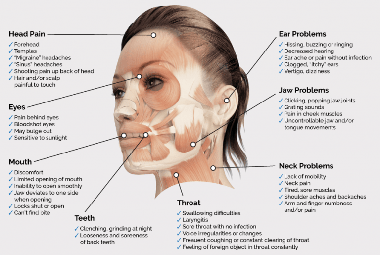 TMJ Associated Issues