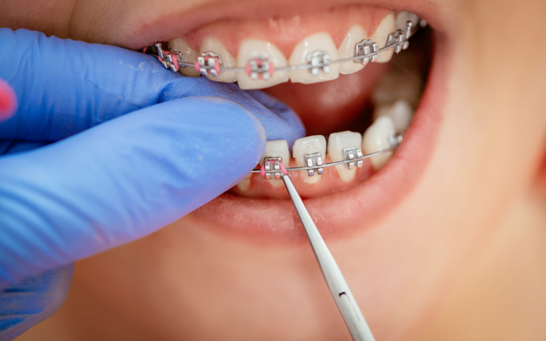 How Old You Have to be to Get Braces?