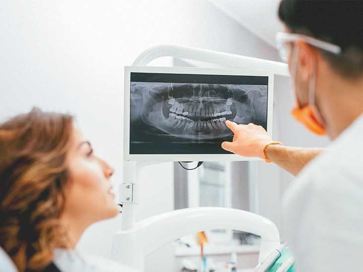 Diagnose of Dental Disease