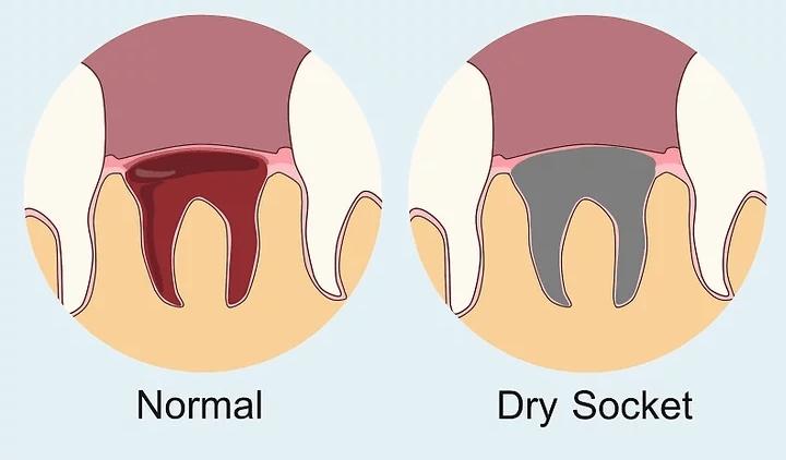 Dry Socket vs Normal Socket