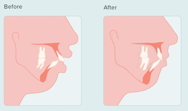 Long face syndrome mouth breathing surgery