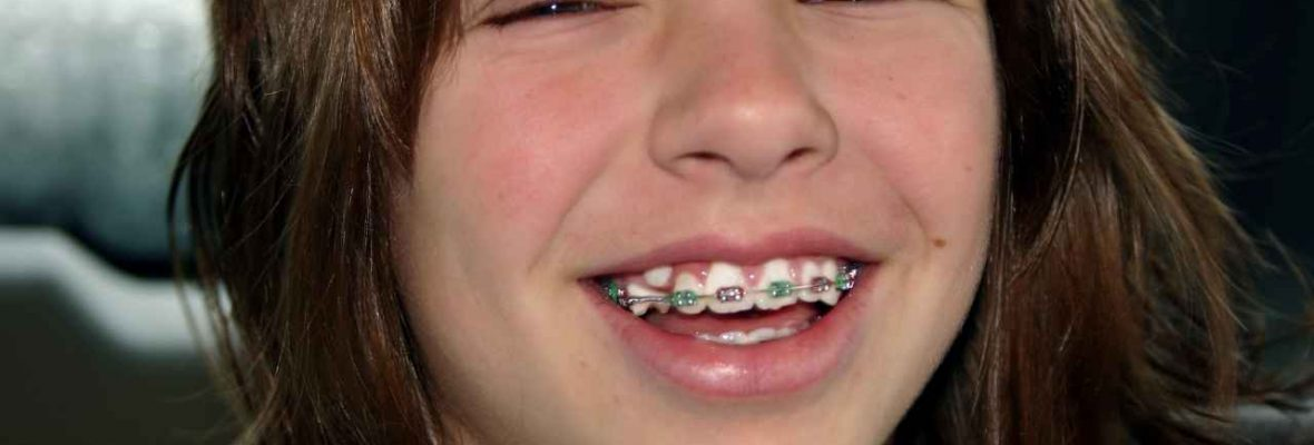 Braces for Kids| Types, Procedure, Cost, Orthodontist, Hygiene