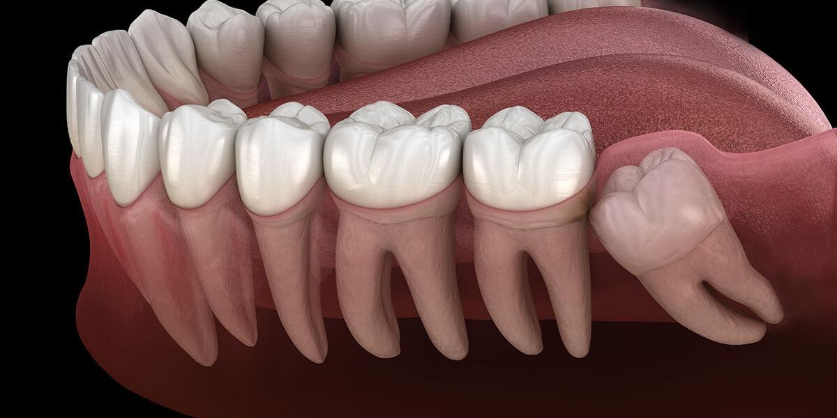How long do wisdom teeth take to come through the gum?