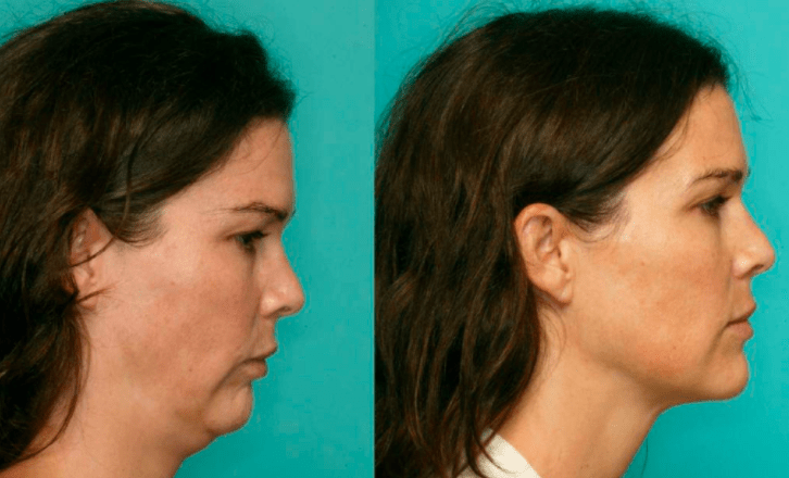 Long face syndrome surgery before and after