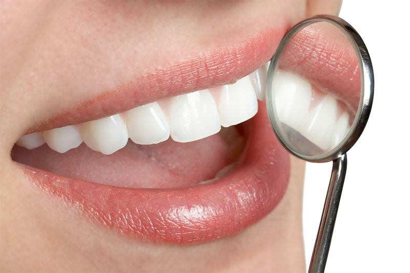 7 Awesome Benefits of Dental Implants