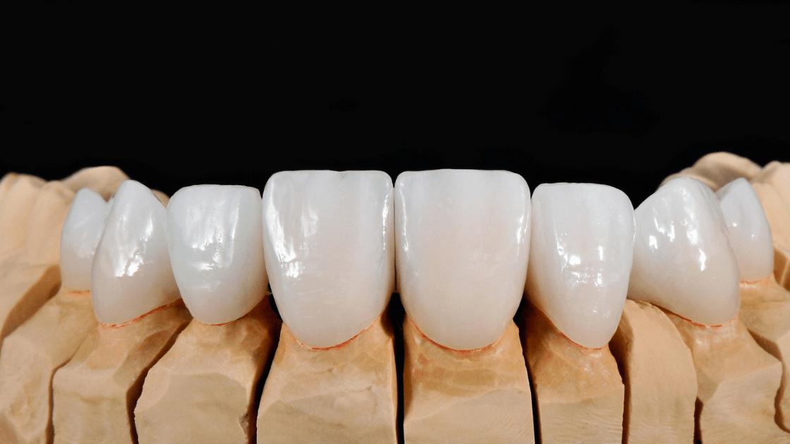 dental veneers care