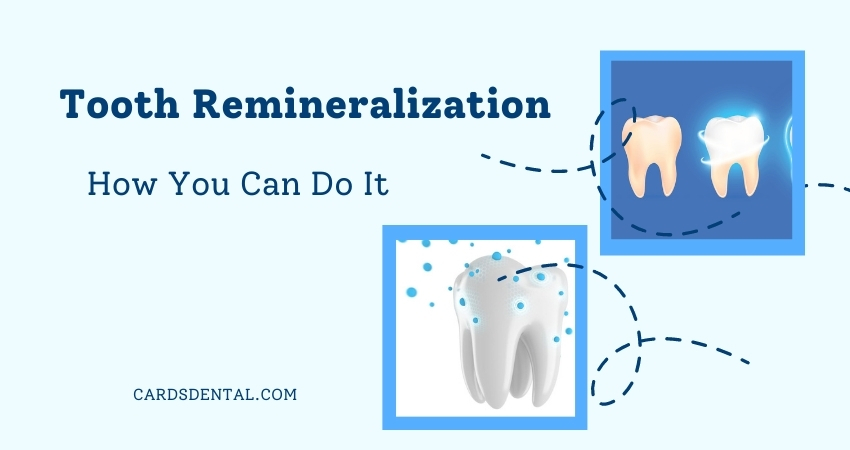 Tooth Remineralization And How You Can Do It