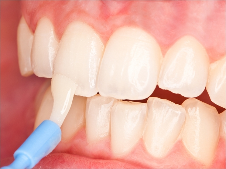 How to Remineralize Your Teeth