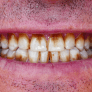 how-to-avoid-staining-your-teeth