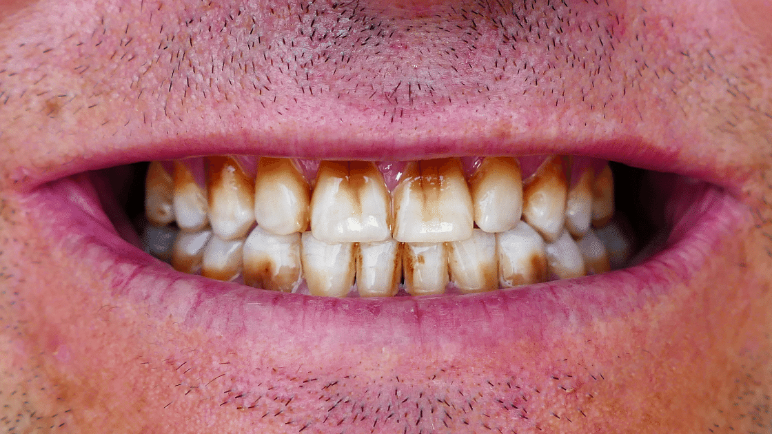 How to Avoid Staining Your Teeth?