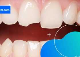 What To Do When You Damage Your Teeth