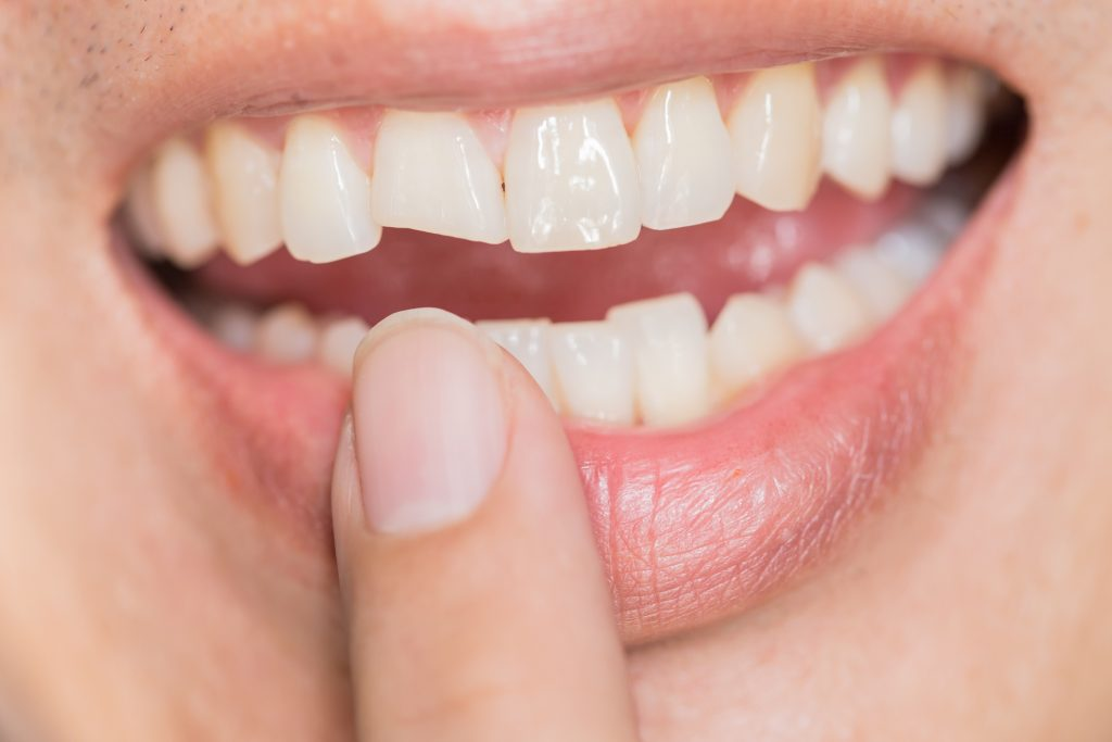 What Causes a Tooth to Break?