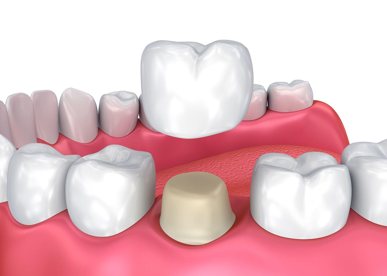 dental crown02